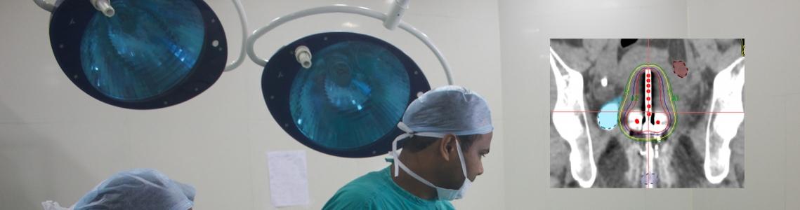 radioterapia para el cáncer de próstata ciclo 1