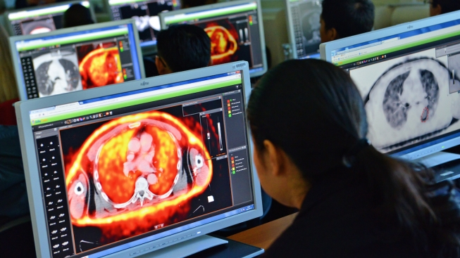 Doctors receive IAEA training in 3-D radiotherapy tools to more accurately target cancer