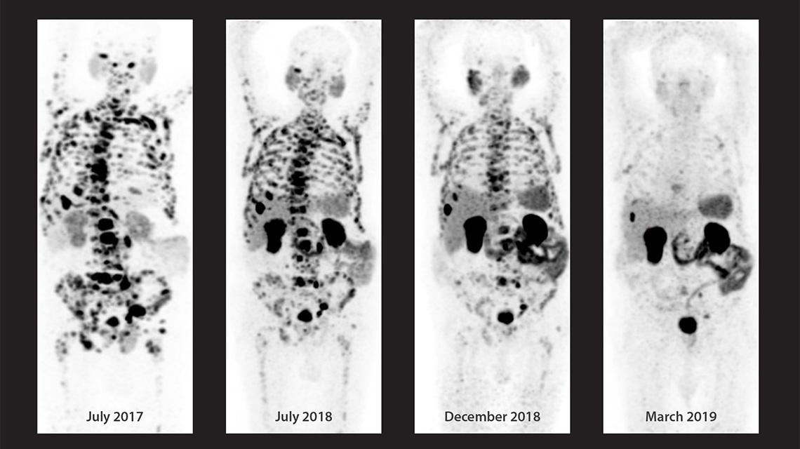 evolucion del cancer de prostata