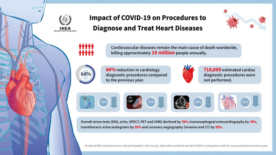 COVID-19 Pandemic Causes Major Decrease in Heart Disease Tests, IAEA Survey Shows