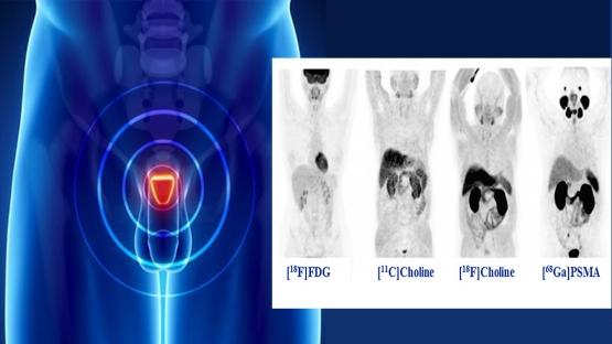 ga-68-psma pet/ct for prostate cancer