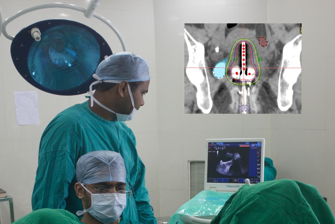 helping asia fight cancer through advanced brachytherapy
